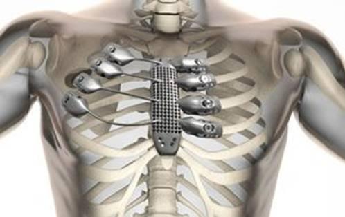 3D çap vasitəsi ilə insan üçün qabırğa cap edirlər - 1